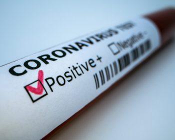 Coronavírus força 40 MIL trabalhadores a solicitarem auxílio doença em 2020